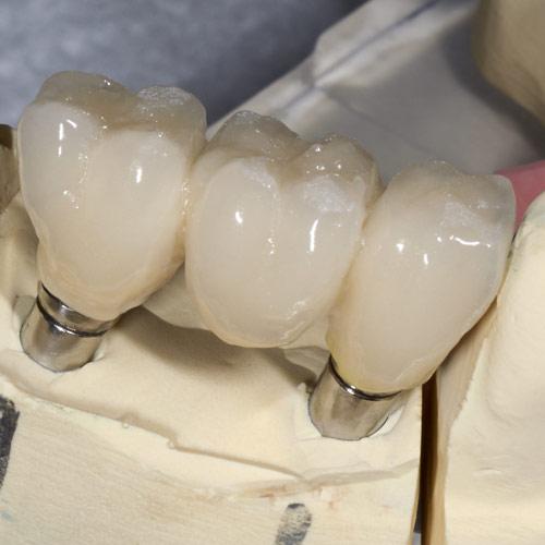 dental-crowns-bridges-77515